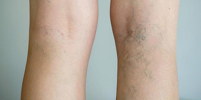 Delay In Opting For Varicose Veins Treatment May Take Away Your Mobility