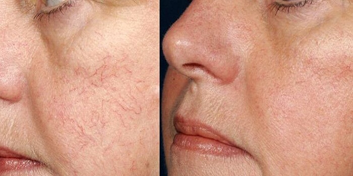 Facial Varicose Veins and Treatment