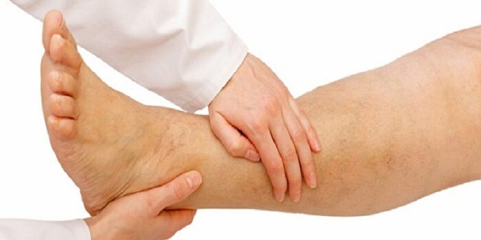 Varicose Vein Pain Treatment