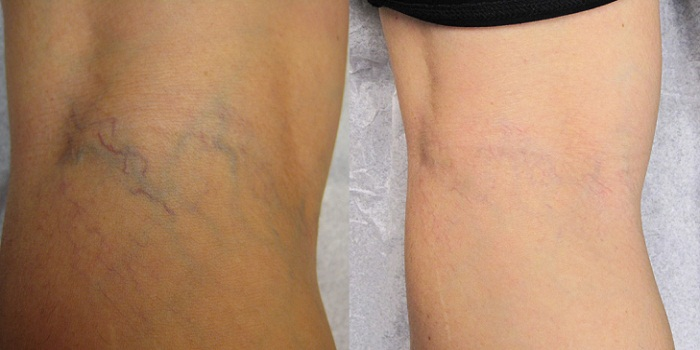 Varicose Veins Removal and Treatment